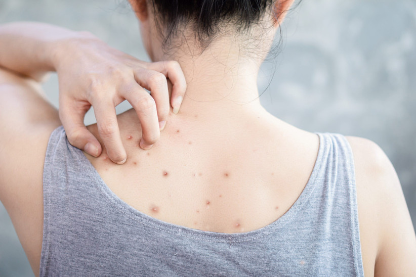 Bacne ways to get rid of Back acne: