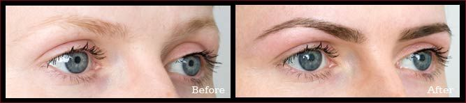 HD Brows - Before and After