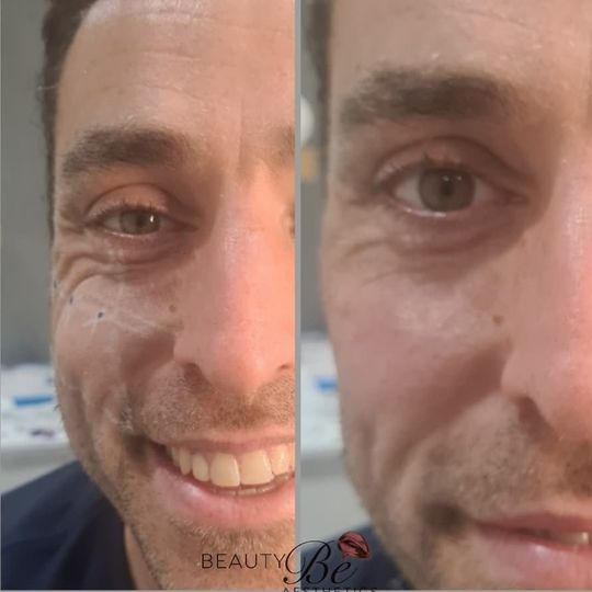 Male facial line softening