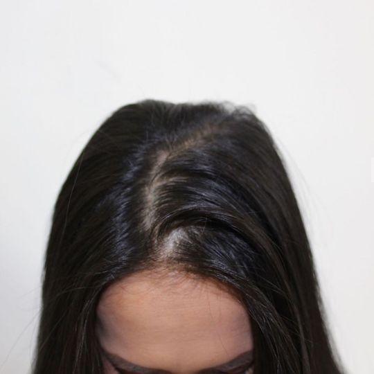 Beauty, Hair & Make Up Scalp FX 2