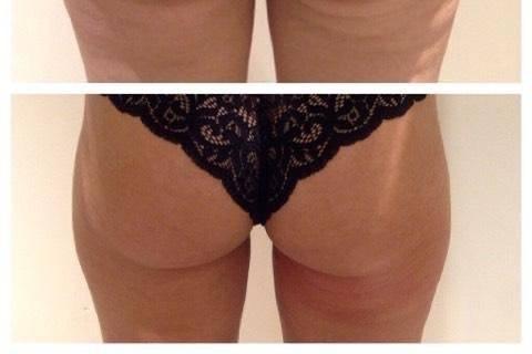 Cryotone backs of legs