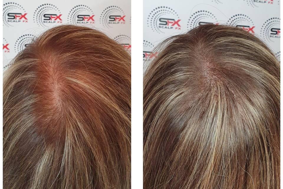Beauty, Hair & Make Up Scalp FX 1