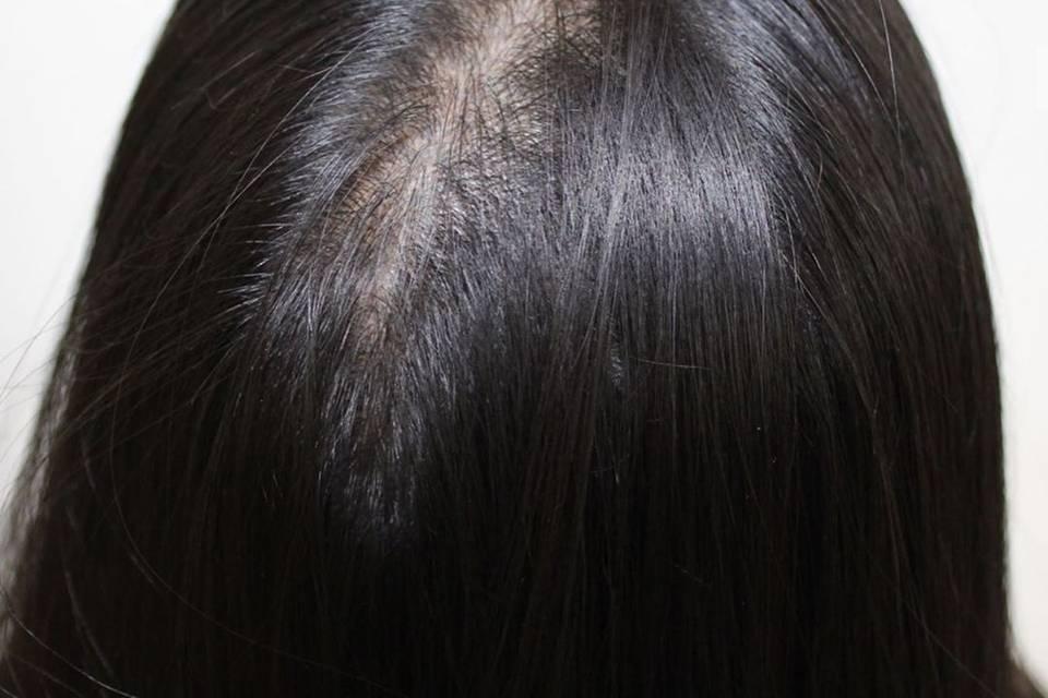 Beauty, Hair & Make Up Scalp FX 4